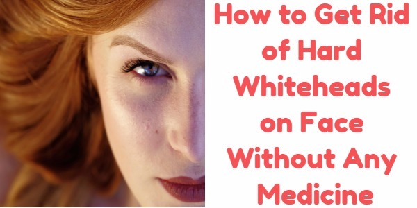 How to Get Rid of Hard Whiteheads on Face Without Any Medicine?