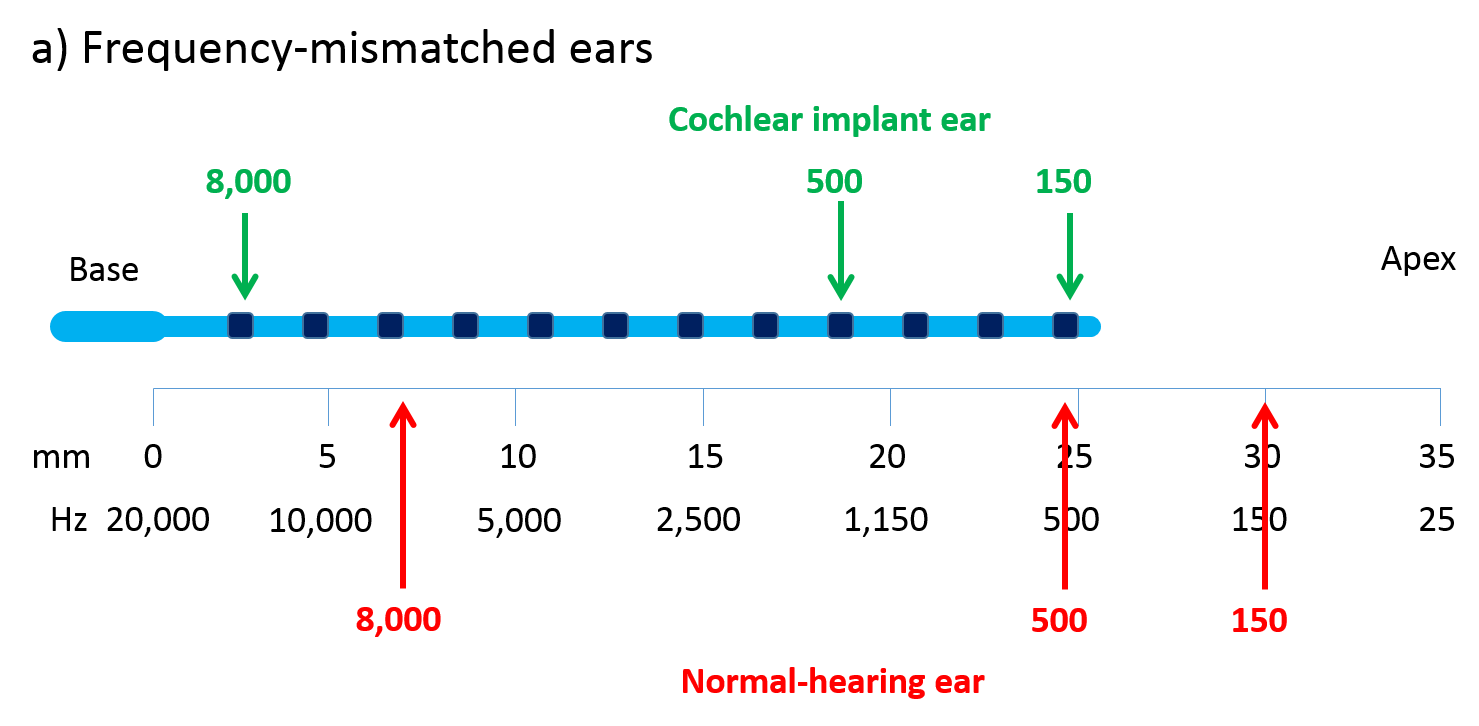 hight resolution of a schematic of an unrolled cochlea showing how frequency mismatch arises because the cochlear implant electrode array blue cannot be inserted all the way