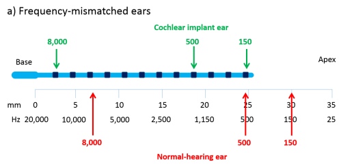 small resolution of a schematic of an unrolled cochlea showing how frequency mismatch arises because the cochlear implant electrode array blue cannot be inserted all the way