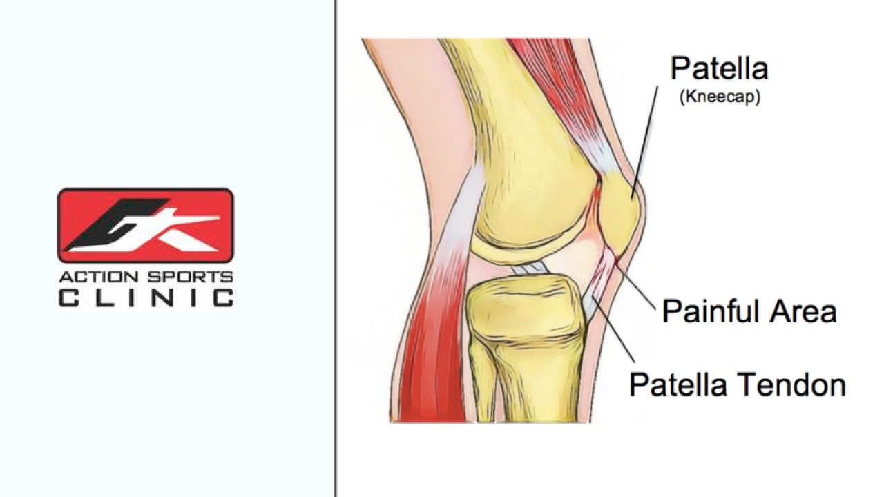 hight resolution of diagram of a patella
