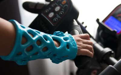ActivArmor Transitions from Cast to Splint Through Healing Phases