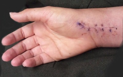 Observation of Skin While Immobilized Can Catch Infections Earlier