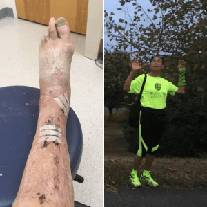 Patient Returns To ActivArmor After Traditional Cast Caused Terrible Skin Breakdown