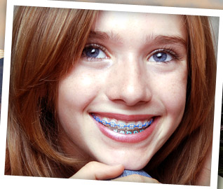 rubber bands braces diagram 2006 crf50 wiring wearing | active beauty tips