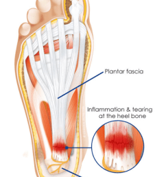 but at times it can feel like a sharp pain along the sole of the foot it is caused by overuse and inelasticity of the plantar fascia  [ 779 x 1100 Pixel ]