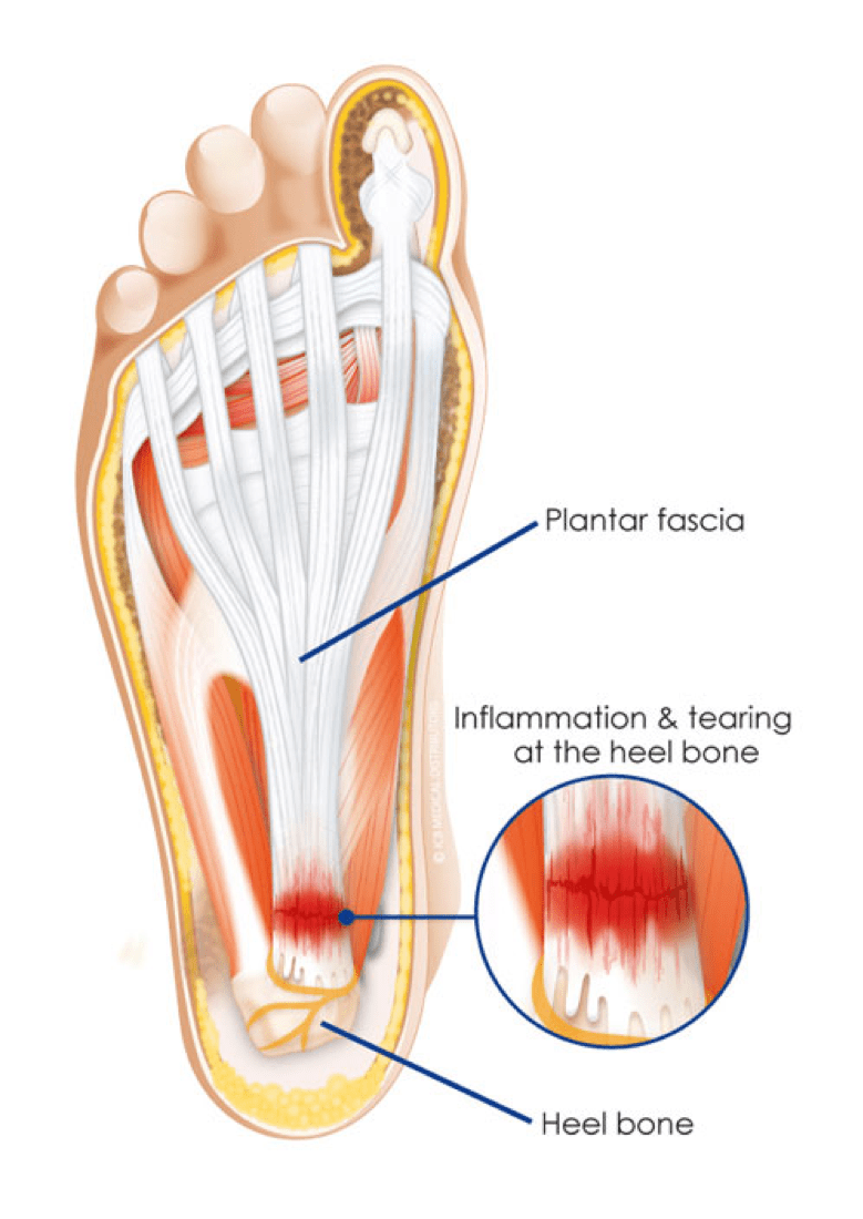 medium resolution of  of the heel but at times it can feel like a sharp pain along the sole of the foot it is caused by overuse and inelasticity of the plantar fascia