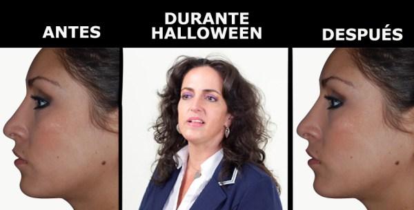 Los cirujanos plásticos logran sorprendentes resultados para halloween.