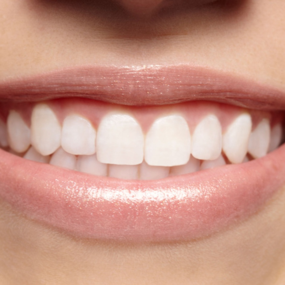 Toothpain and 6 ways to relieve it.