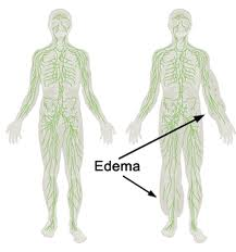 outline-edema