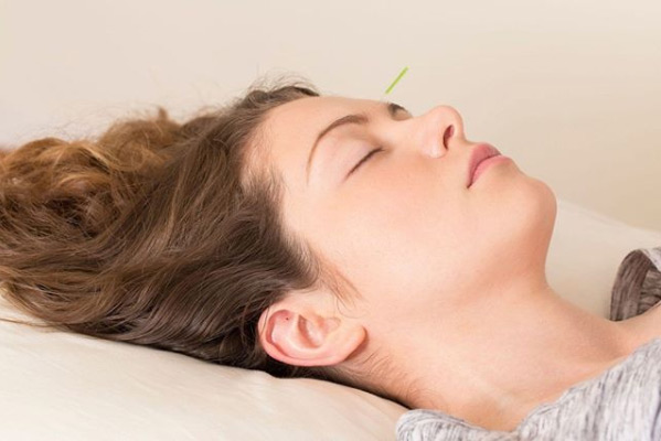Anxiety Treatment with Acupuncture - Acupuncture Practice ...