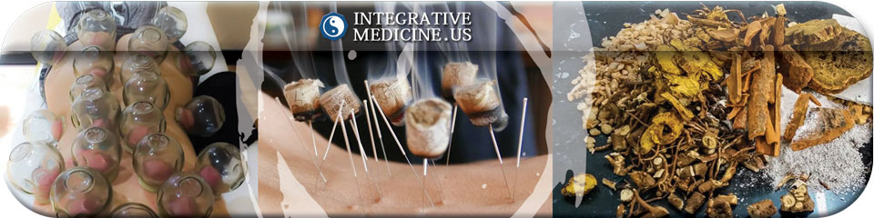 Acupuncture Coral Springs