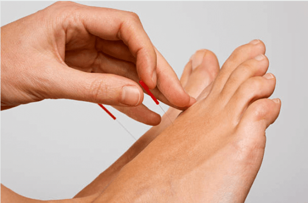 acupuncture for foot pain