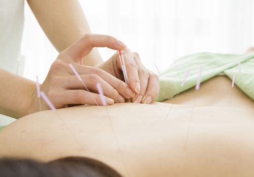acupuncture for chronic fatigue syndrome near me