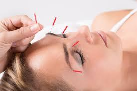 acupuncture for nasal and eye allergies near me
