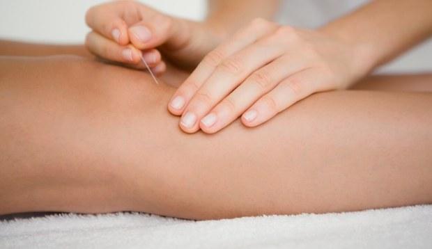 acupuncture for arthritis near me