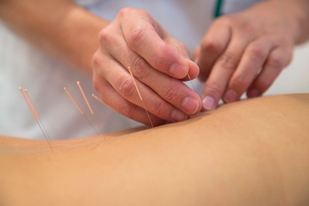 Acupuncture For Blood Pressure, Hypotension, Hypertension