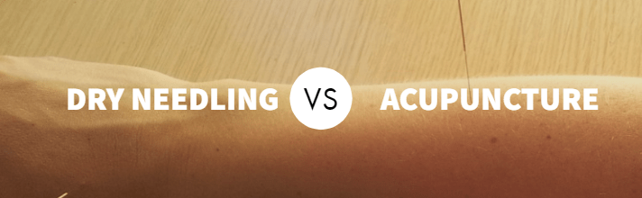 Why Dry Needling is NOT Really Acupuncture