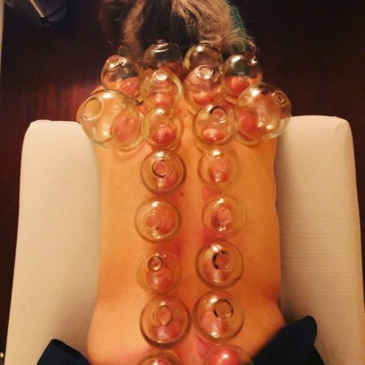 lwracupuncture_cupping
