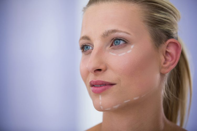 Close-up of woman with marks drawn for cosmetic treatment