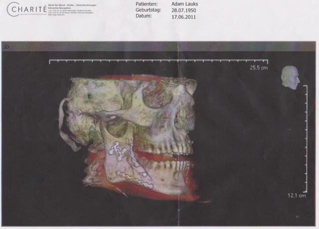 Nach der ersten Operation 001