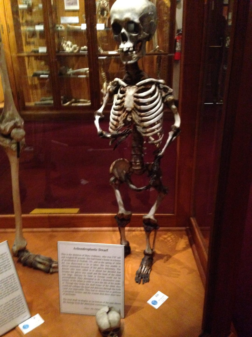 Achondroplastic Dwarf display at The Mütter Museum