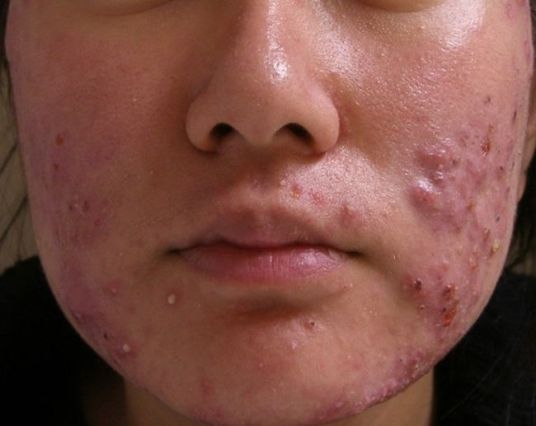 công dụng của isotretinoin