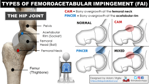 The Hip in Ice Hockey Part 6: How to Treat Hip Pain and The Impact of Early Sport Specialization on Femoroacetabular Impingement in Young Athletes