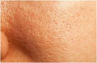 Enlarged-Pores-Oily-Skin1