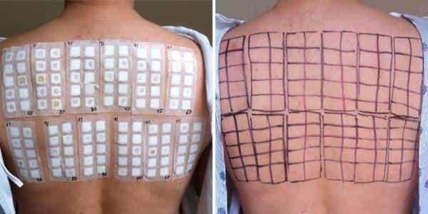 1.attēls. Pacientam tiek izvēlēts alergēnu panelis, ievietots alumīnija konteineros un piefiksēts pie muguras ādas ar hipoalerģisku plāksteri.