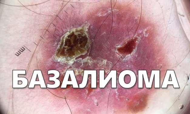 Базалиома – виды, симптомы, диагностика и лечение