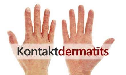 Kontaktdermatīts. To tipi, diagnoze un ārstēšana.