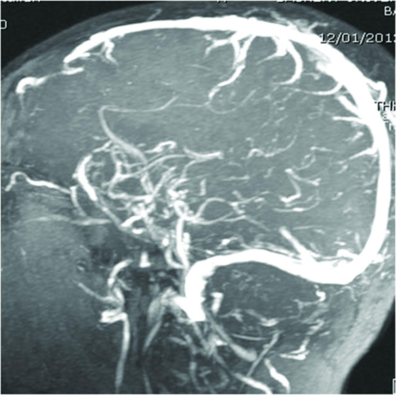 Brain Mri Sagittal Sinus Thrombosis