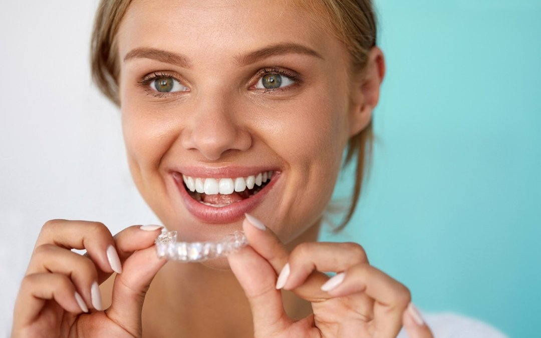 What To Know Before Getting Invisalign in Joplin