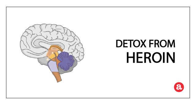 Heroin detox timeline: How long to detox from heroin?