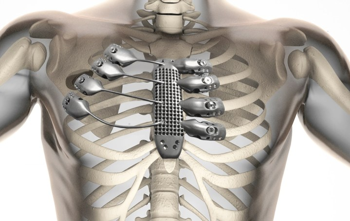World's First 3D Printed Polymer Rib Cage Reconstruction