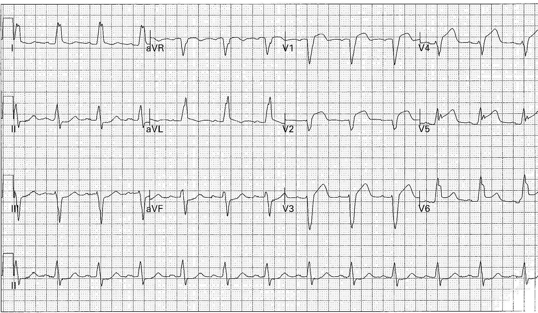 ECG of the week 40