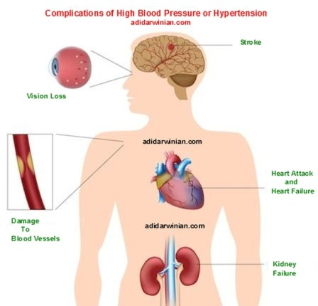 complications of high blood pressure or hypertension - adidarwinian