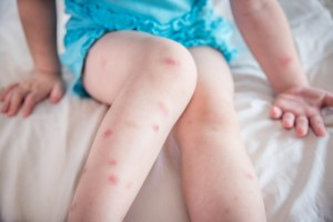 A child sits on a bed while appearing to had bed bug bites on her legs.
