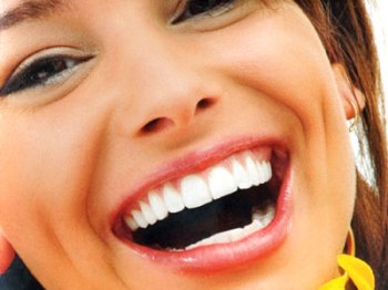 Teeth Whitening Systems 1