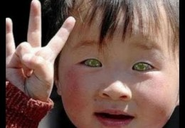 STAR CHILD BORN IN CHINA – EYES THAT SEE IN DARKNESS