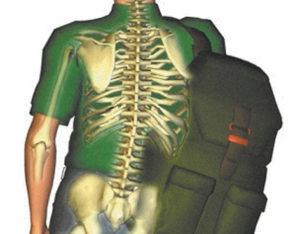 deformacion columna mochila