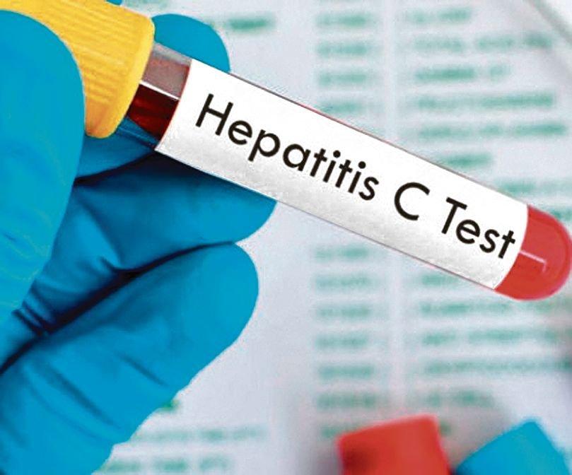 Hepatitis C: de pelear por los medicamentos a salir a buscar pacientes