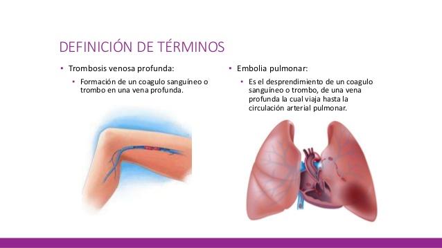 Trombosis pulmonar ¿cómo prevenirla?