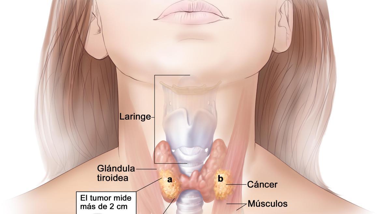 Cáncer de tiroides: el 97% de los pacientes tiene posibilidades de curación