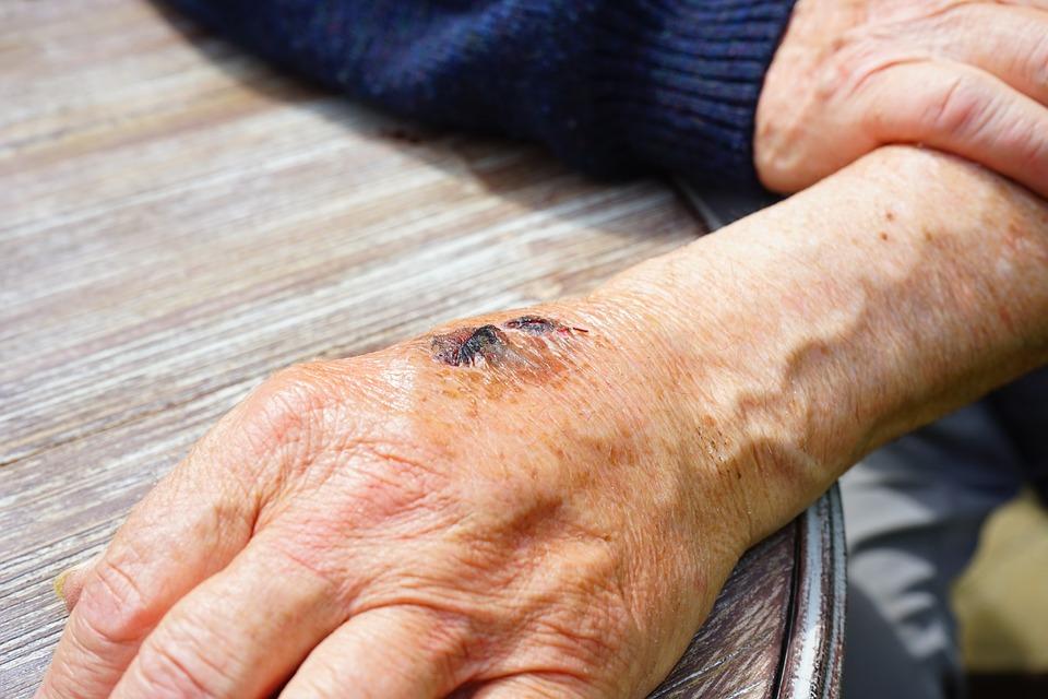 ¿Cómo acelerar la cicatrización de heridas complejas?