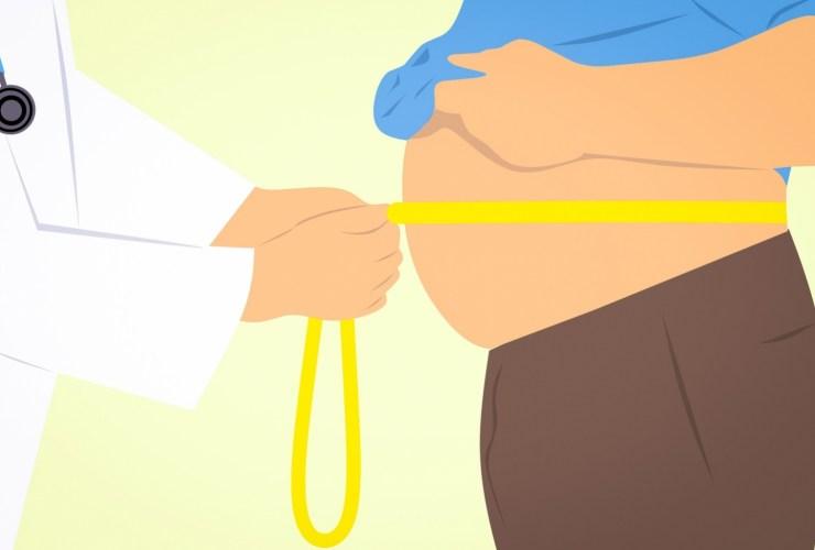 COVID-19 ¿Cuáles son los riesgos para los pacientes obesos?