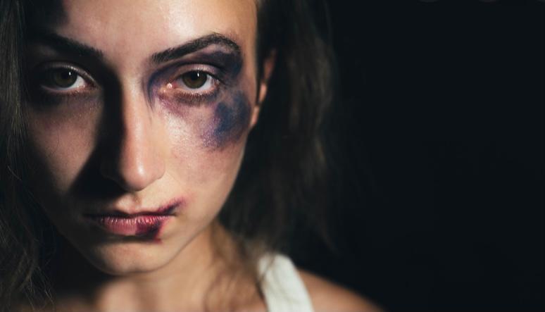 ضحايا العنف ضد النساء