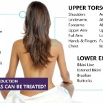 laser-hair-removal-areas