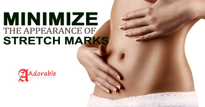 best stretch marks removal in delhi (1)