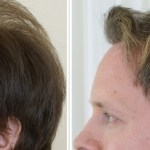 Nonsurgical Hair Restoration, Best way to Get Back you Hair